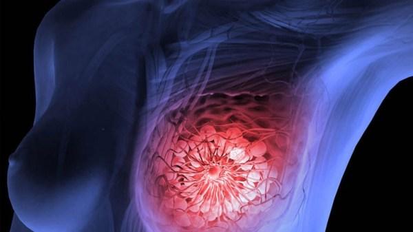 Καρκινος Μαστού