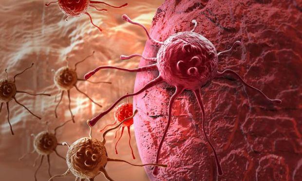 Καρκινικό κύτταρο