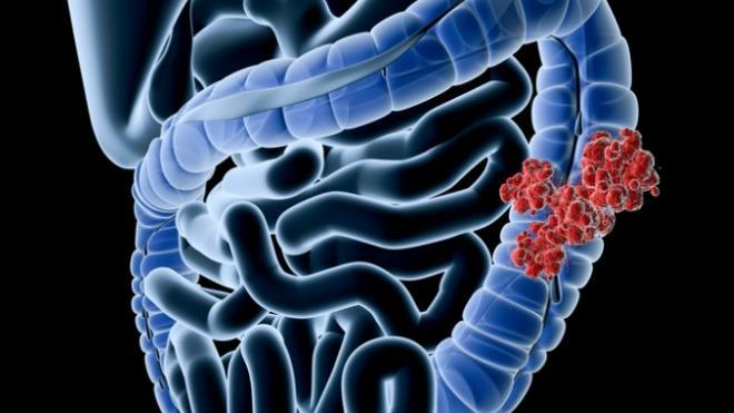 Καρκίνος του παχέος εντέρου: Με ρυθμό 6%-7% το χρόνο αυξάνονται τα περιστατικά μεταξύ των νέων