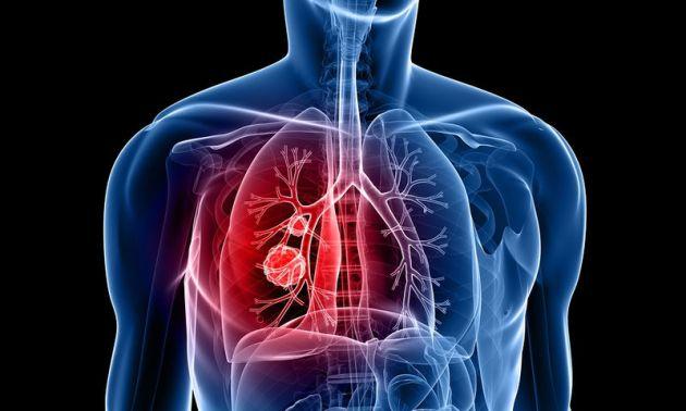 «Θερίζει» ο καρκίνος του πνεύμονα στην Ελλάδα
