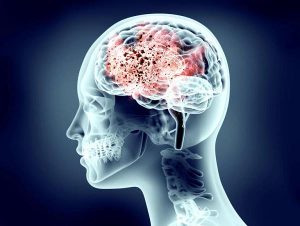 Το αυξημένο επίπεδο ουρικού οξέος στο αίμα ενός ανθρώπου μπορεί να είναι ένδειξη μειωμένου κινδύνου εκδήλωσης της νόσου Πάρκινσον