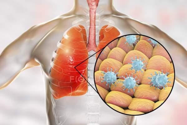 Επιδημία μυστηριώδους πνευμονίας στην κεντρική Κίνα - αποκλείστηκαν η γρίπη των πτηνών και το SARS