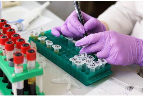 Ηπατίτιδα C: H εξέταση που πρέπει να κάνουν όσοι γεννήθηκαν μεταξύ 1945 και 1980