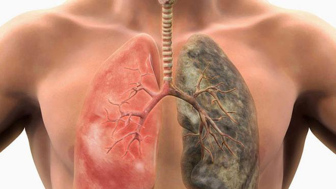 Σε πόσο καιρό θα καθαρίσουν οι πνεύμονες αν κόψετε σήμερα το κάπνισμα
