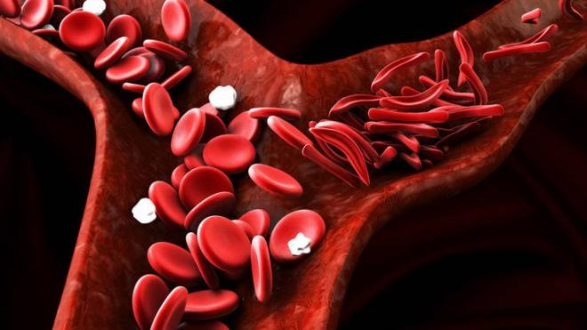 Αισιόδοξο το μέλλον για τους ανθρώπους με μεσογειακή αναιμία