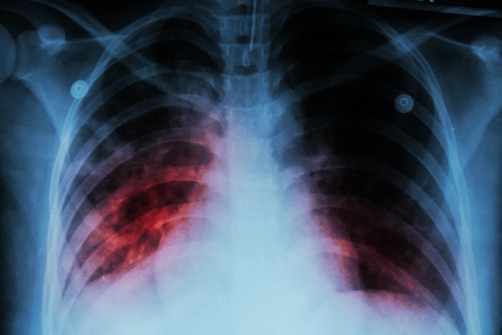 Σαρώνει σε παιδιά και νέους η φυματίωση