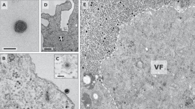 Επιστήμονες εντόπισαν μυστηριώδη ιό, που τα γονίδιά του δεν έχουν καταγραφεί ακόμα, στη Βραζιλία.