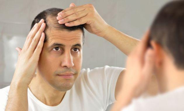 Tips Atasi Rambut Rontok Berlebihan di Rumah dengan Mudah - Rambut Rontok