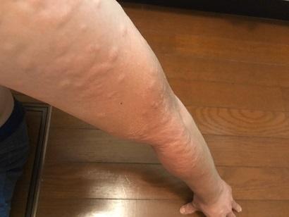 ヒメシャラの剪定時についていたチャドクガの毒針にさされた腕(2)