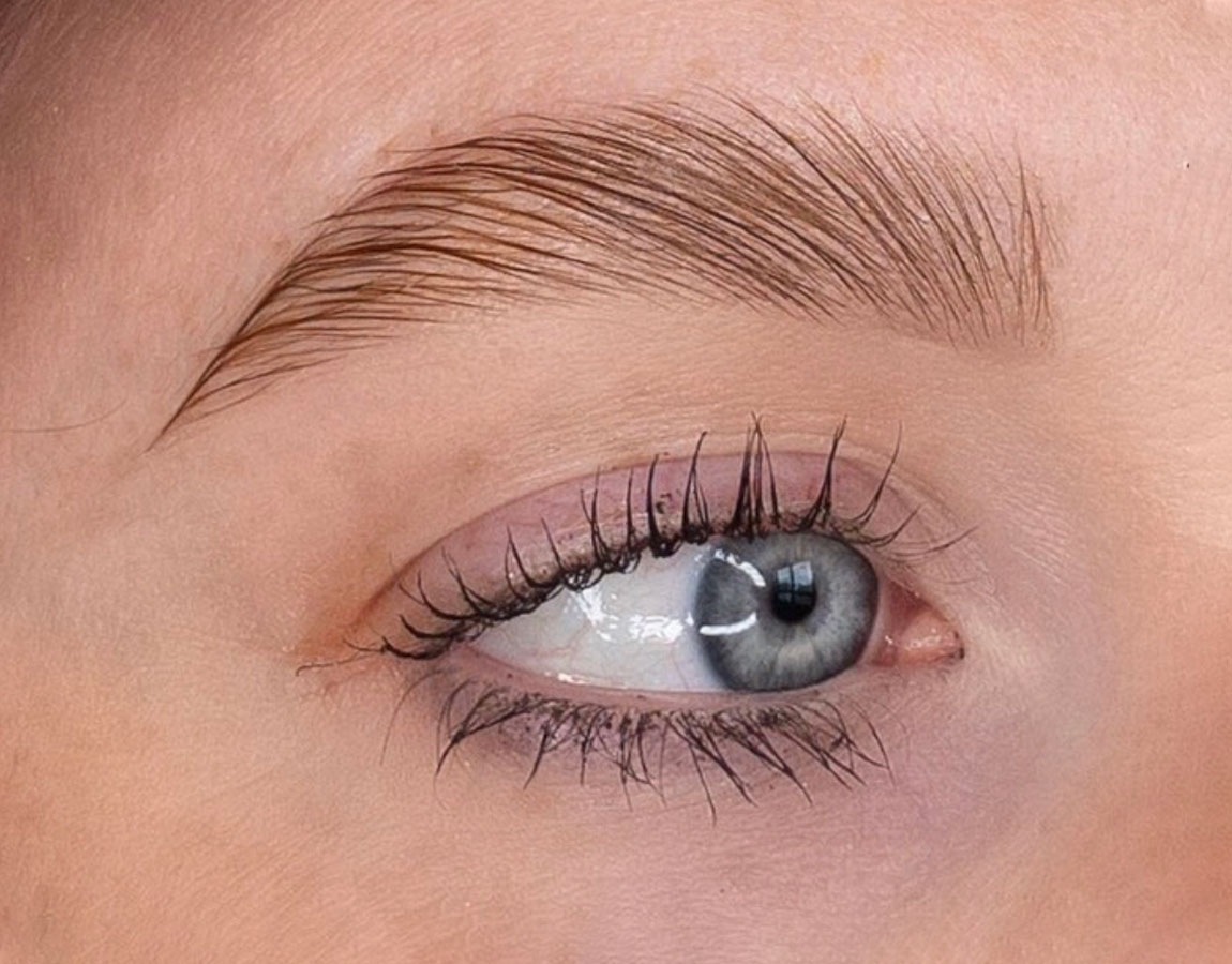 The Brow Lift After