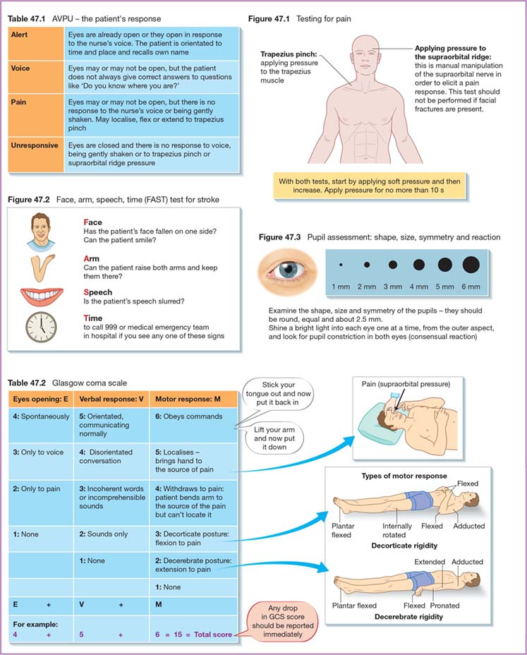 Diagram shows Pupil assessment: shape, size, symmetry and reaction, Glasgow coma scale with Eyes opening: E, Verbal response: V, and hMotor response: M, Face, arm, speech, time (FAST) test for stroke, testing for pain, et cetera.
