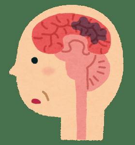 脳機能障害