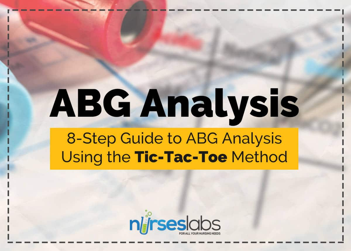 8 Step Guide To Abgysis Tic Tac Toe Method