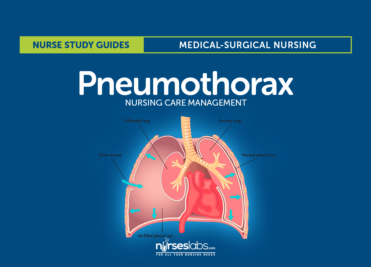 Pneumothorax Nursing Care And Management Study Guide