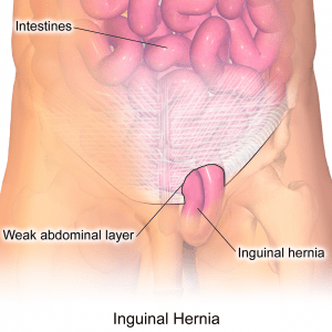Illustration of an inguinal hernia