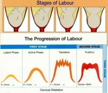 Stages of Labor 2
