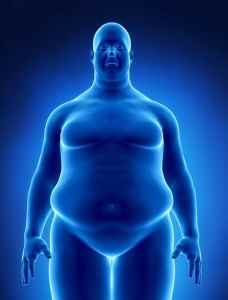 Obesity concept in x-ray