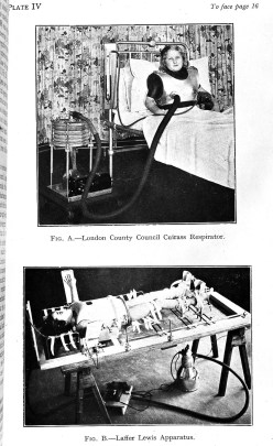 Two images of young people in hospital beds strapped to respirators. One is a metal breast plate hooked up to a tube.