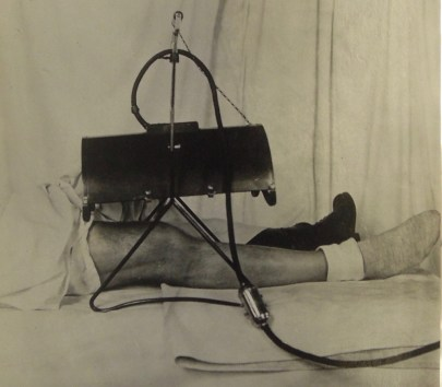A close-up of the lower half of a person laying on a white-draped medical bed with one leg exposed. A black apparatus shaped like a half cylinder is suspended over the leg.