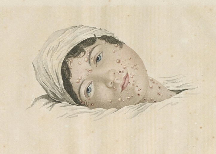 Drawing of a woman's head, covered in small pox sores