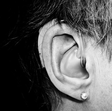 Black and white close up photo of an ear with a hearing aid in it.