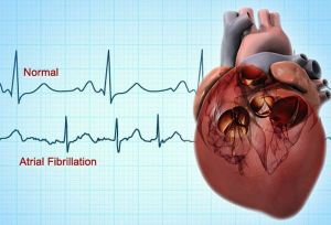 Types of Atrial fibrillation Disease with Causes & Nursing Intervention