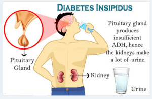 Types of Diabetes Insipidus Disease with Causes and Nursing Intervention