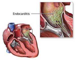 Endocarditis Disease with Causes, Treatment and Nursing Intervention