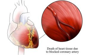 Types of Myocardial Infarction Disease (MI) with Nursing Intervention