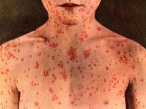 Measles Disease with Symptoms, Treatment and Nursing Intervention