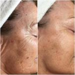 Collagen increased, fine lines filled, blemishes removed using Human Stemcell Microneedling