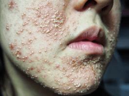Bahaya kosmetik berbahan mercury (foto ilustrasi)