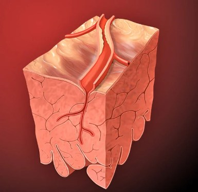 Coronary Artery Lesion