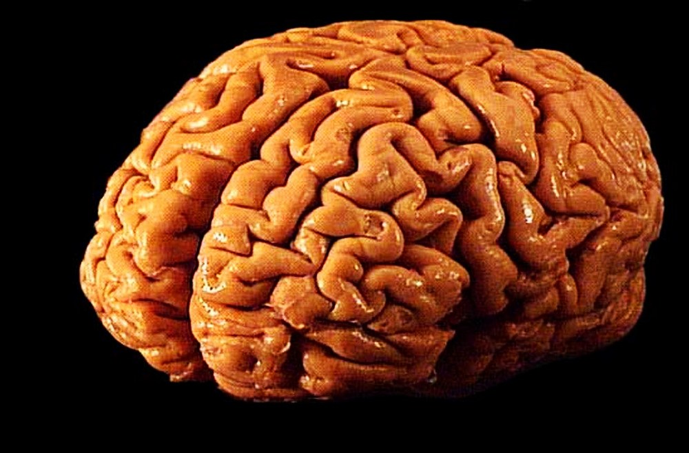 Eating For Your Brain To Help Prevent Dementia