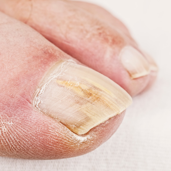 Fungal Infection Nail Bed