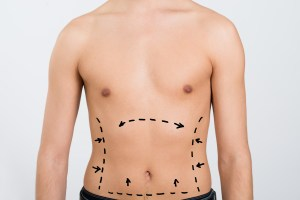 Call us if you are a man who wants a tummy tuck.
