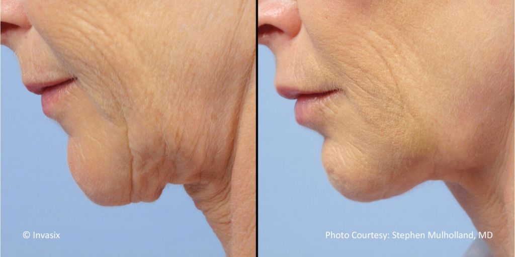 FaceTite leaves no scarring and makes you look youthful.