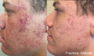 Draper, UT Fractora skin resurfacing, before and after