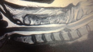 Police Brutality Henderson Broken Neck MRI
