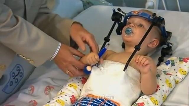 Такого еще не бывало: медики спасли малыша, которому оторвало голову в ДТП