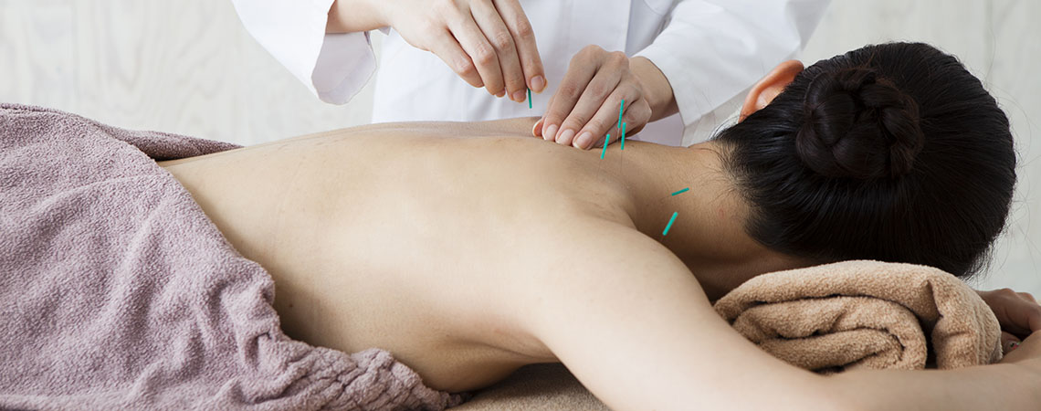 Woman getting acupuncture to her back in a clinic