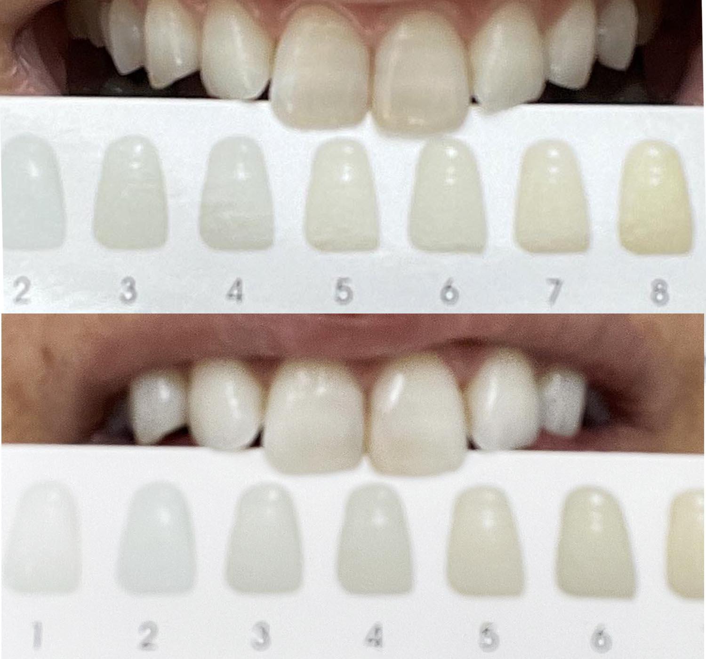 【歯のケア】ホワイトニングキット「Mr. Bright」2週間分使い切ってみた結果(閲覧注意ごめんなさい)