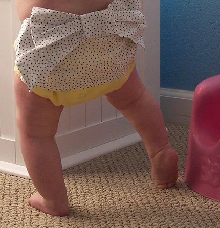 Yellow Sweet Bottoms diaper cover with black polka dot bow - Baby girl sizes 0-18 months