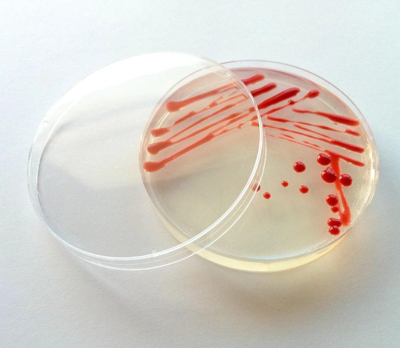 Red pigments make pretty bacteria