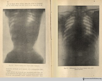 Fig. 26: Female torso with corset. Fig 27: X-ray of a female torso without a corset. In O'Followell, Le Corset, vol. 2, 1908.