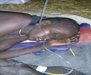 CDM patient in Ayod County (Photo/Rev James Tut)