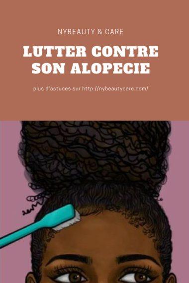 quels soins pour son alopécie