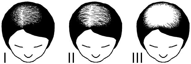 l'alopecie androgénétique chez les femmes