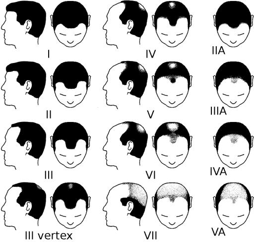 schémas de l'alopecie chez les hommes