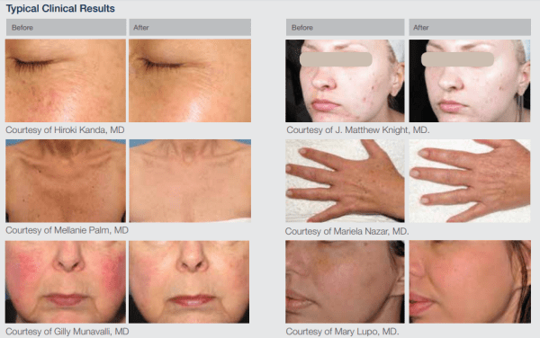 Laser ResurFX before and after